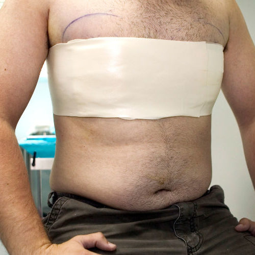 3 Ways Male Breast Reduction Surgery Will Improve Your Life