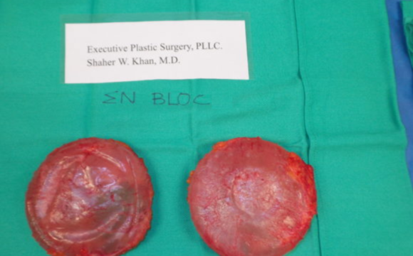 Breast Implant Removal – Breast Implant Illness